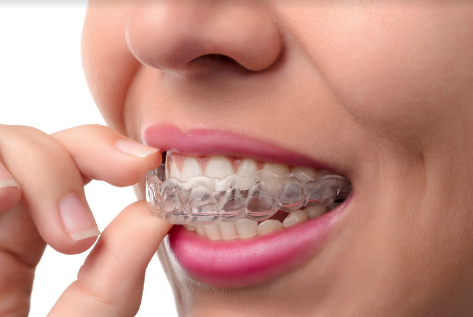 Invisalign clear braces for adults | DePaola