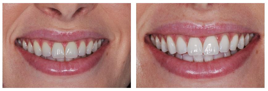 Frank DePaola - Glo Science Teeth Whitening in Hoboken